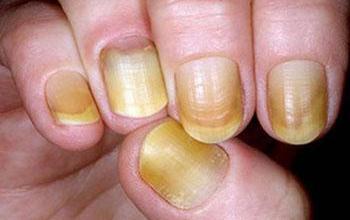 صورة طبيبة: لون الأظافر يشير لمرض السكري