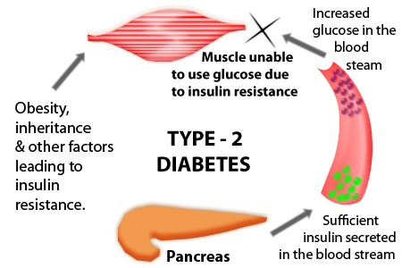 Image result for diabetes mellitus type 2