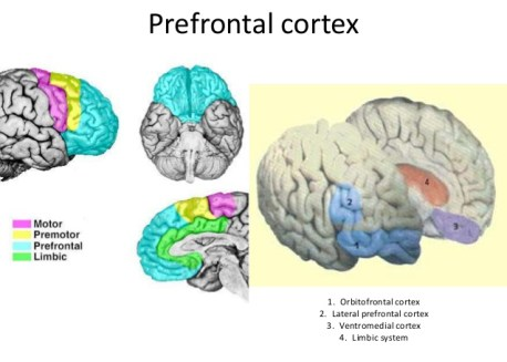 frontotemporal-dementia-neural-circuits-genetics-and-neuropathology-3-638