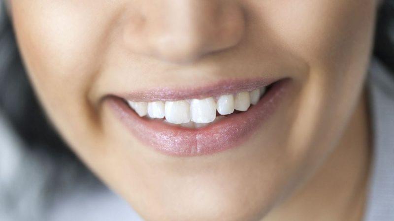 Comment prendre soin de sa bouche ? — Queen MAFA