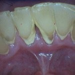 The tongue tie contributed to the heavy wear into the dentin.