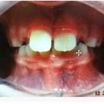 Crowded teeth, small airway