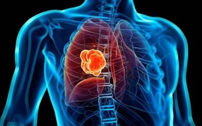 Charlas sobre cáncer de pulmón esta semana: NewYork-Presbyterian