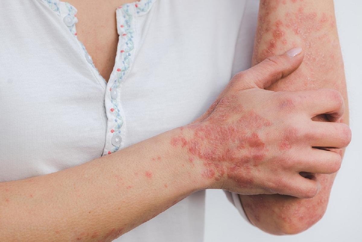enfermedad piel