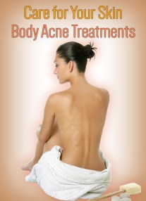 Care for Your Skin – Body Acne Treatments