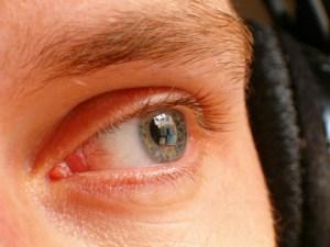 eye-358403_1280