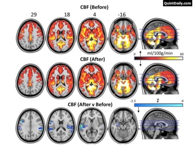 Psilocybin Mushroom - Magic mushroom Brain Changes