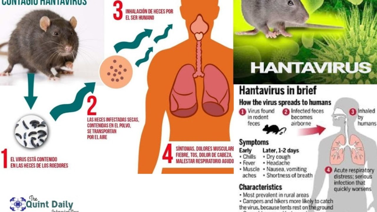 Hantavirus - All You Need to Know, New Virus in China - QuintDaily