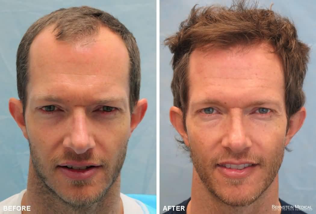 Bernstein Medical   Center for Hair Restoration