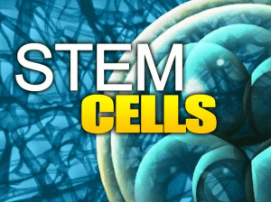 Stem Cells for Headaches