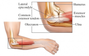 Stem Cell Therapy for Tennis Elbow