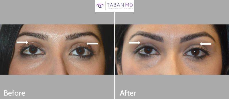 Eyelid Filler Injection Dark Circles
