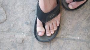 Injured toe