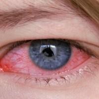 Síndrome do Olho Vermelho - O que pode ser?