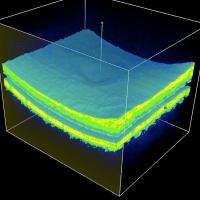 Nova tecnologia utilizando inteligência artificial promete agilizar o diagnóstico de doenças oculares graves