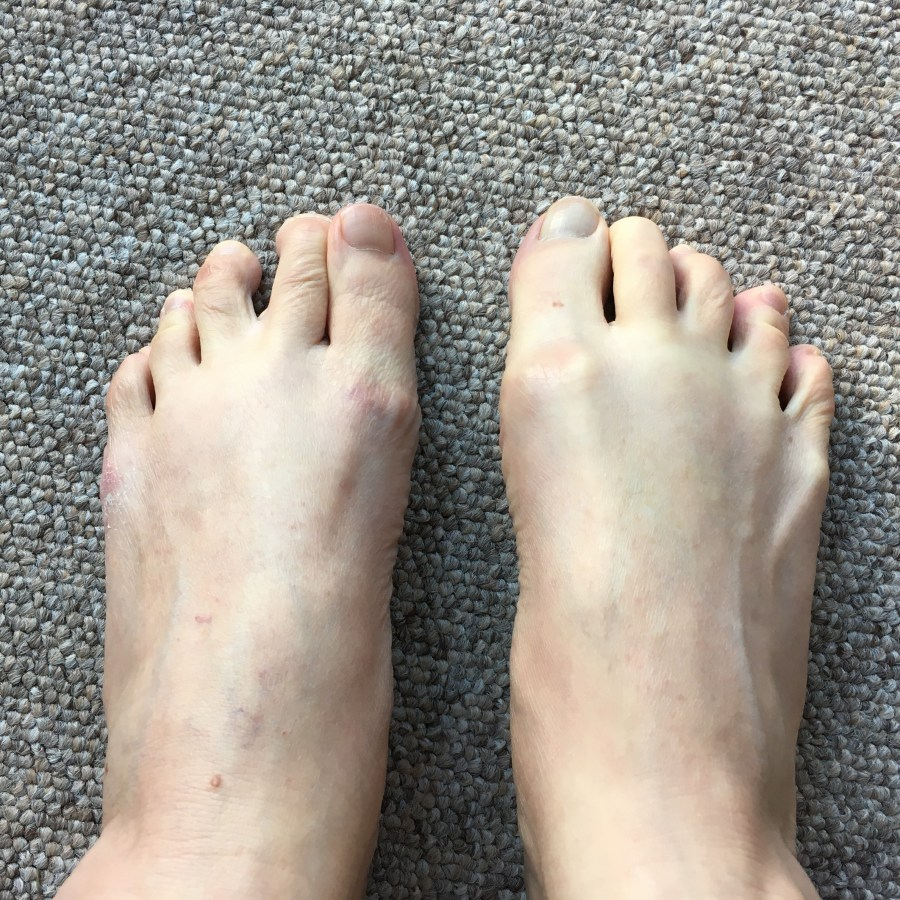 How to keep your feet and toes healthy.