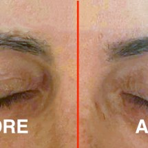 eyebrows before and after 1