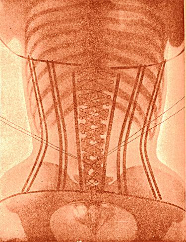 X-Ray corset