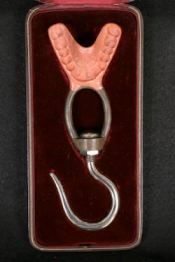 Steel Jaw Apparatus. Image: Spokane Museum.