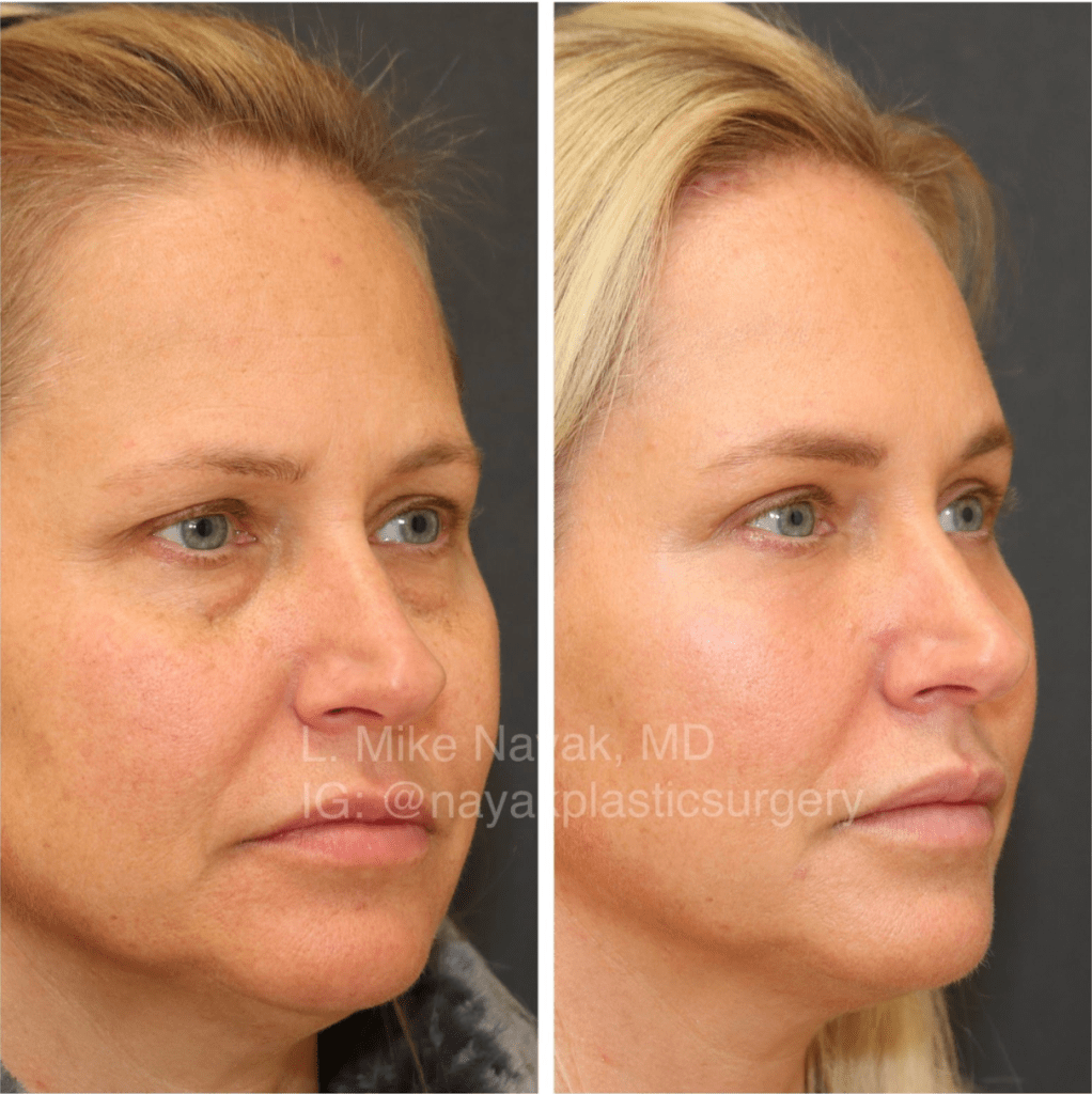 Lower blepharoplasty surgery performed by Dr Nayak