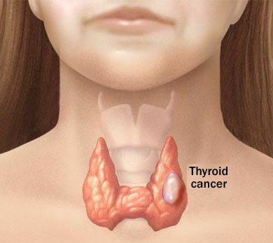 Thyroid-Cancer