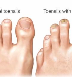 fungal nail treatment [ 1467 x 956 Pixel ]