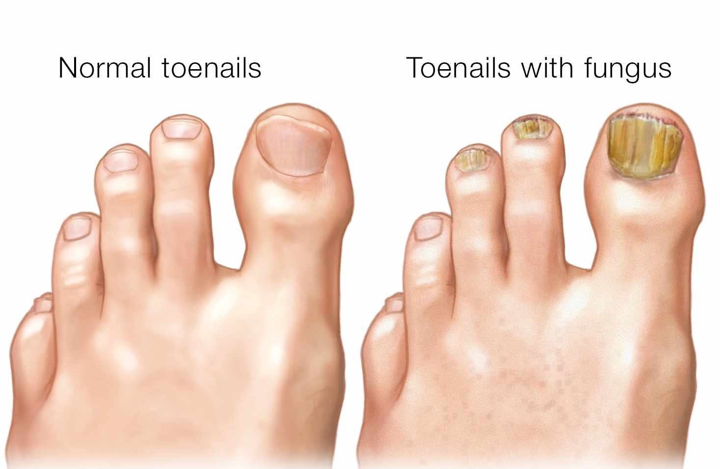 hight resolution of fungal nail treatment