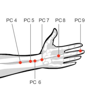 Acupressure massage Pericardium 6 Neiguan point yin deficiency