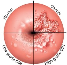 kanceri sherohet