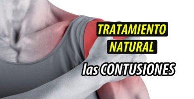 TRATAMIENTO NATURAL CONTUSIONES