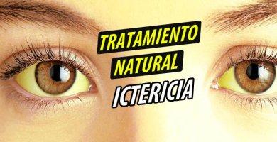 TRATAMIENTO NATURAL ICTERICIA