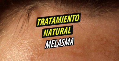 TRATAMIENTO NATURAL MELASMA