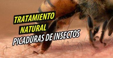 TRATAMIENTO NATURAL PICADURAS DE INSECTOS