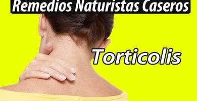 Remedios Caseros para la Torticolis