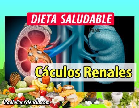 Dieta para los Cálculos Renales