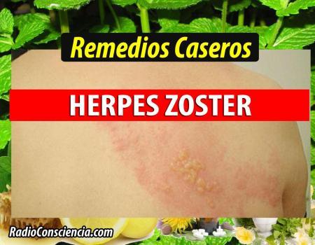 Remedio para el Herpes Zóster