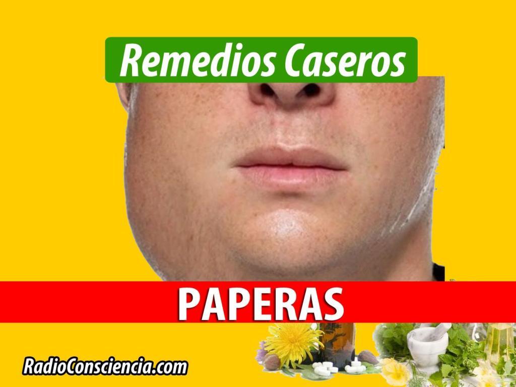remedio para las paperas