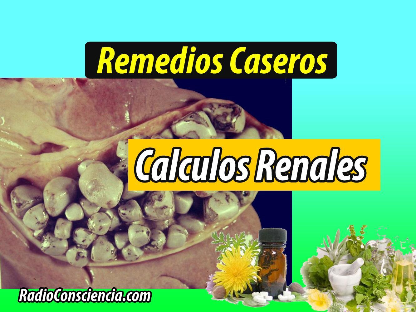 Medicina Casera: Remedio para los Cálculos renales ...