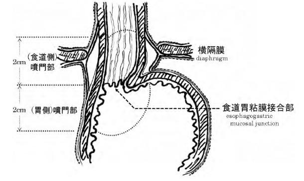 噴門部解剖