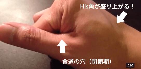 線状分離像:His角について