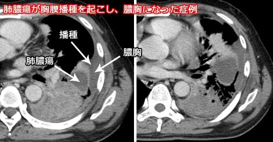 胸膜播種を起こした肺膿瘍と膿胸
