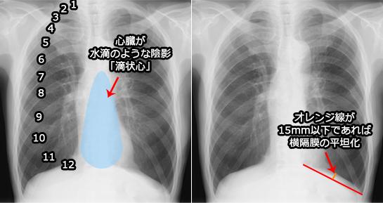 滴状心と横隔膜の平坦化