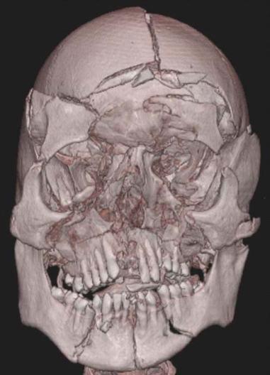 brain autopsy