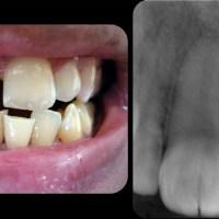 Geminación dental !