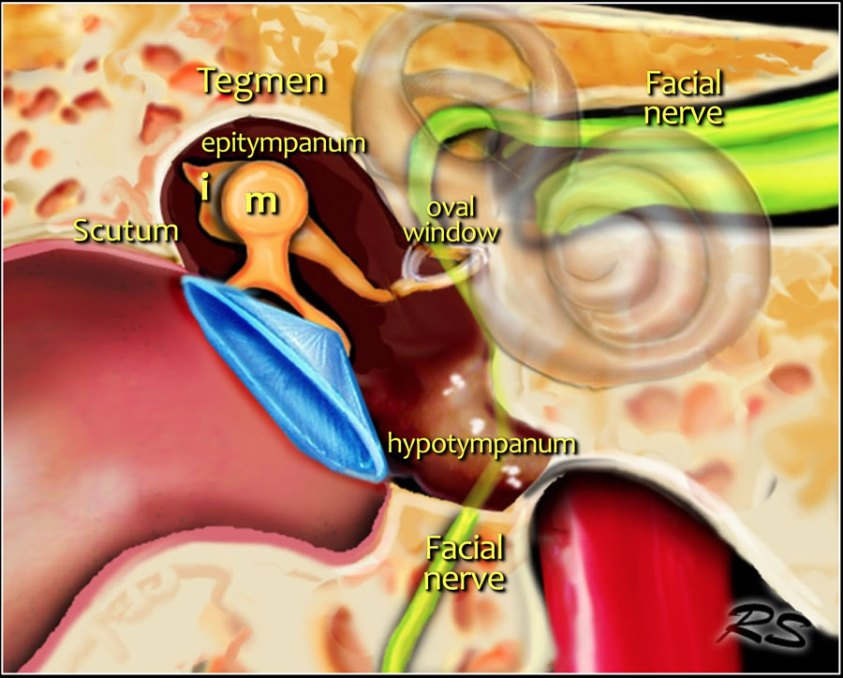 The Radiology Assistant : Temporal bone - Anatomy 2.0
