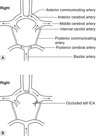 Ultrasound assessment of the extracranial cerebral