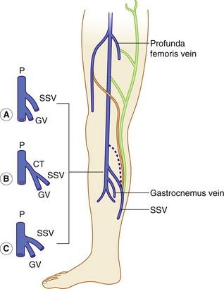 veins in the foot diagram pioneer fh x730 bt leg vein wiring all data popliteal diagrams hubs legs problems anatomy of lower limb venous