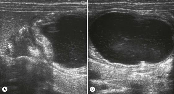 ultrasound of the paediatric abdomen