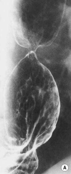 Oesophagus   Radiology Key