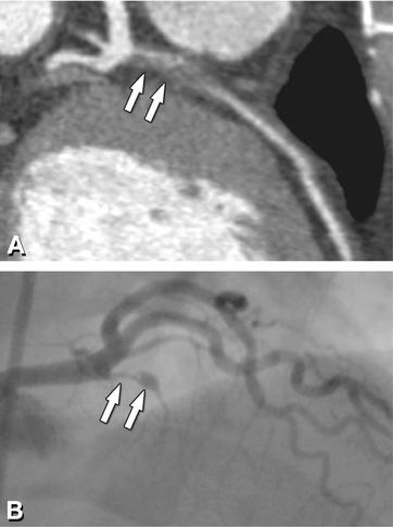 Coronary Artery Plaque   Radiology Key
